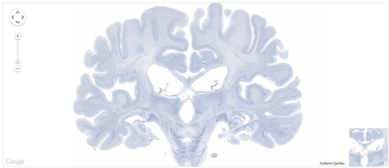H.M.'nin Beyni Dijital Bulut Ortamına Aktarıldı!